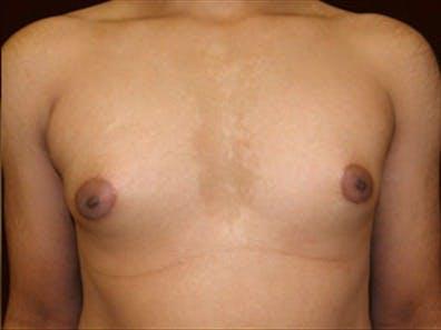 Gynecomastia Gallery - Patient 39248391 - Image 1