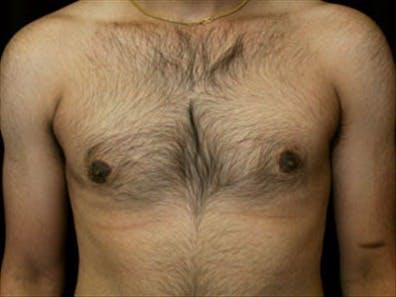 Gynecomastia Gallery - Patient 39248391 - Image 2