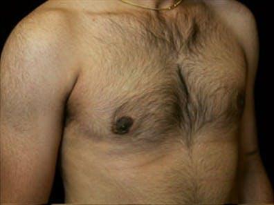 Gynecomastia Gallery - Patient 39248391 - Image 4