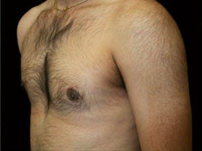 Gynecomastia Gallery - Patient 39248391 - Image 6