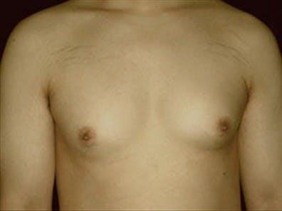 Gynecomastia Gallery - Patient 39248392 - Image 1