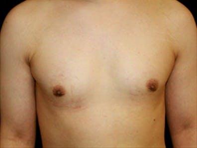 Gynecomastia Gallery - Patient 39248392 - Image 2
