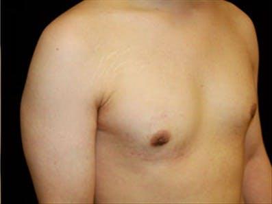 Gynecomastia Gallery - Patient 39248392 - Image 4