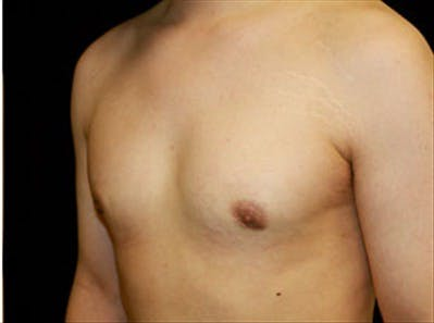 Gynecomastia Gallery - Patient 39248392 - Image 6