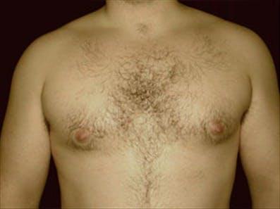 Gynecomastia Gallery - Patient 39264354 - Image 1