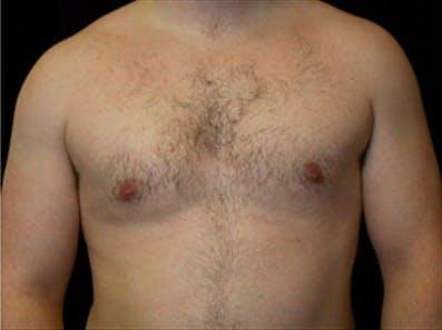 Gynecomastia Gallery - Patient 39264354 - Image 2