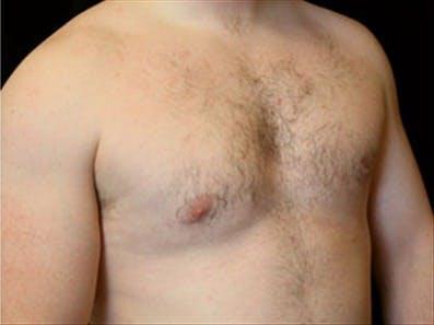Gynecomastia Gallery - Patient 39264354 - Image 4