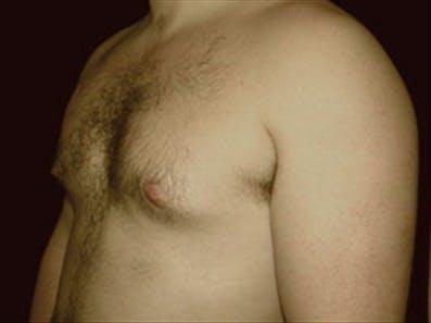 Gynecomastia Gallery - Patient 39264354 - Image 5