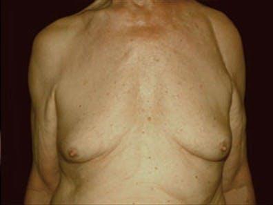 Gynecomastia Gallery - Patient 39264355 - Image 1