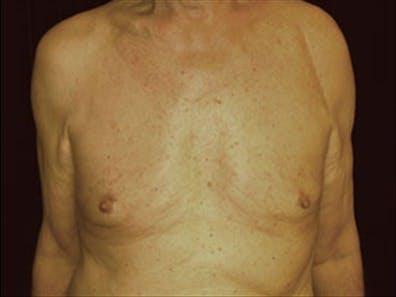 Gynecomastia Gallery - Patient 39264355 - Image 2