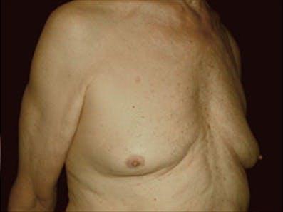 Gynecomastia Gallery - Patient 39264355 - Image 3