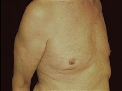Gynecomastia Gallery - Patient 39264355 - Image 4