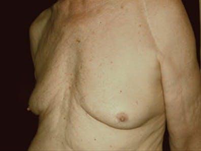 Gynecomastia Gallery - Patient 39264355 - Image 5