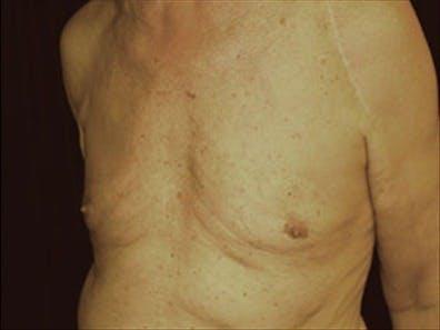 Gynecomastia Gallery - Patient 39264355 - Image 6