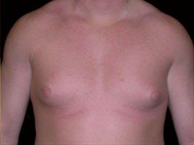Gynecomastia Gallery - Patient 39264359 - Image 1