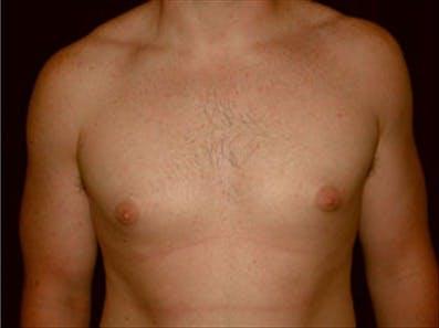 Gynecomastia Gallery - Patient 39264359 - Image 2