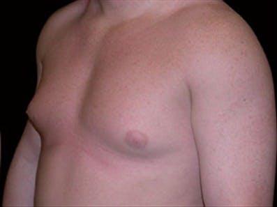 Gynecomastia Gallery - Patient 39264359 - Image 5