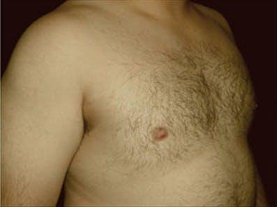 Gynecomastia Gallery - Patient 39264360 - Image 4