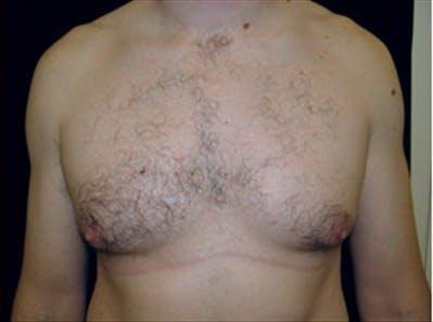 Gynecomastia Gallery - Patient 39264363 - Image 1