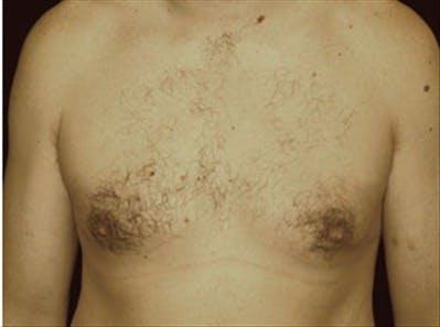 Gynecomastia Gallery - Patient 39264363 - Image 2