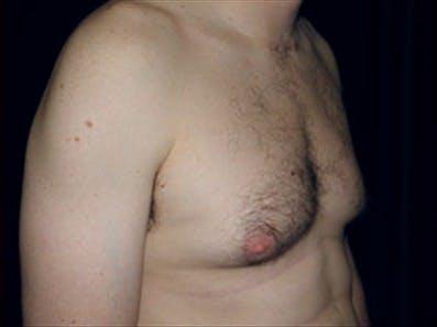Gynecomastia Gallery - Patient 39264363 - Image 3