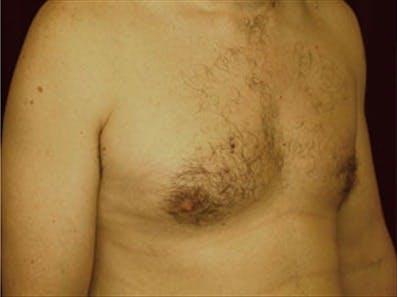 Gynecomastia Gallery - Patient 39264363 - Image 4