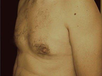 Gynecomastia Gallery - Patient 39264363 - Image 6