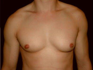 Gynecomastia Gallery - Patient 39264365 - Image 1