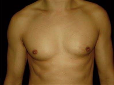 Gynecomastia Gallery - Patient 39264365 - Image 2