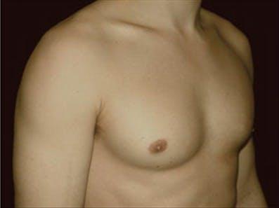 Gynecomastia Gallery - Patient 39264365 - Image 4