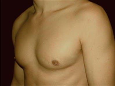 Gynecomastia Gallery - Patient 39264365 - Image 6