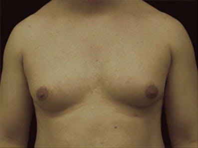 Gynecomastia Gallery - Patient 39264366 - Image 1
