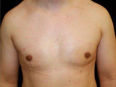 Gynecomastia Gallery - Patient 39264366 - Image 2