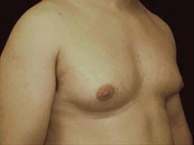Gynecomastia Gallery - Patient 39264366 - Image 3