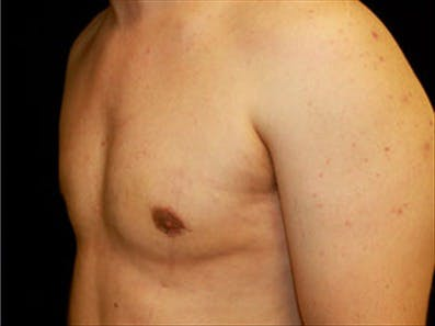 Gynecomastia Gallery - Patient 39264366 - Image 6