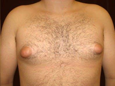 Gynecomastia Gallery - Patient 39264367 - Image 1