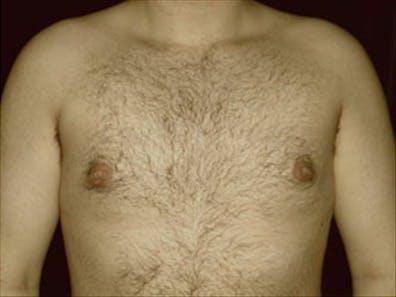 Gynecomastia Gallery - Patient 39264367 - Image 2