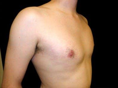 Gynecomastia Gallery - Patient 39348376 - Image 4