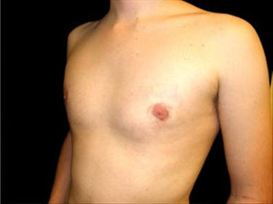 Gynecomastia Gallery - Patient 39348376 - Image 6