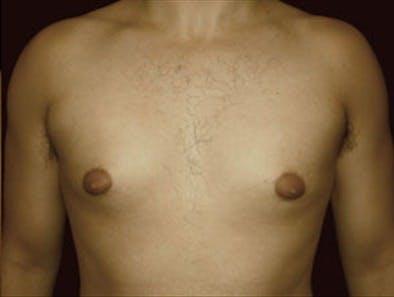 Gynecomastia Gallery - Patient 39348586 - Image 1