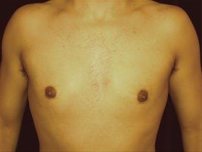 Gynecomastia Gallery - Patient 39348586 - Image 2