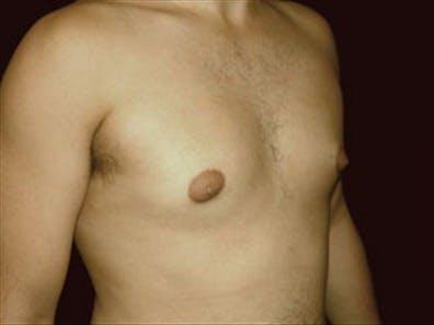 Gynecomastia Gallery - Patient 39348586 - Image 3