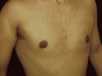 Gynecomastia Gallery - Patient 39348586 - Image 4