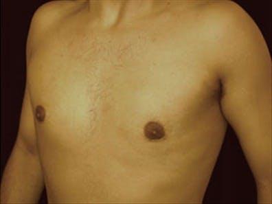 Gynecomastia Gallery - Patient 39348586 - Image 6
