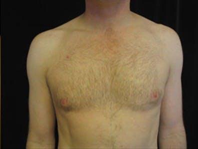Gynecomastia Gallery - Patient 39348677 - Image 1