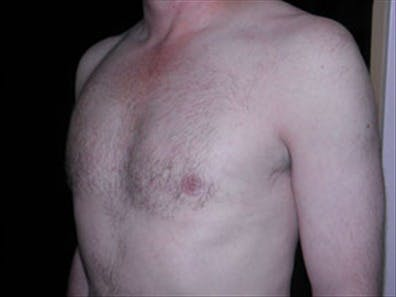 Gynecomastia Gallery - Patient 39348677 - Image 6