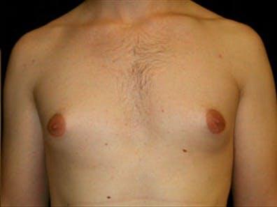 Gynecomastia Gallery - Patient 39348742 - Image 1