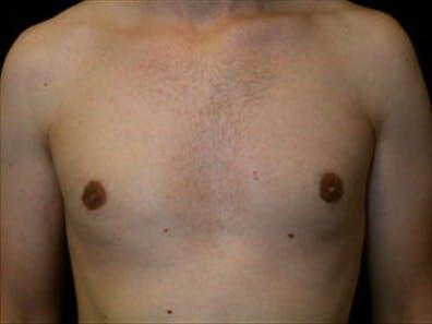 Gynecomastia Gallery - Patient 39348742 - Image 2