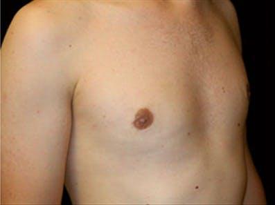Gynecomastia Gallery - Patient 39348742 - Image 4