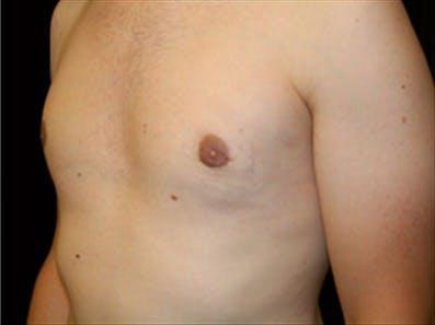 Gynecomastia Gallery - Patient 39348742 - Image 6